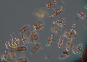 Photo of microscopic Thalassiosira phytoplankton from Sandy Hook Bay